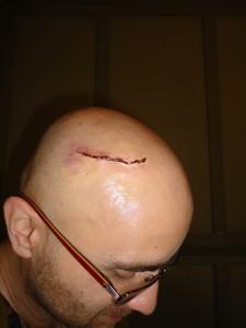 head scar 023